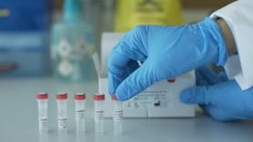 ULTIMA ORĂ // Primul DECES cauzat de coronavirus înregistrat în Transnistria