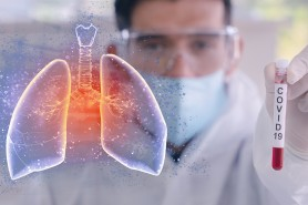 Un nou anti-record! 1.916 de cazuri de infectare cu COVID confirmate în ultimele 24 de ore în Republica Moldova