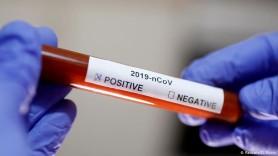 COVID-19 în Moldova: Alte 1843 cazuri noi de infectare iar 29 de persoane au fost răpuse de virus
