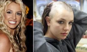 De ce boală suferă Britney Spears. Artista se luptă să scape de tutela tatălui