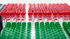 Tulpina britanică de COVID-19 confirmată în Republica Moldova de virusologii germani